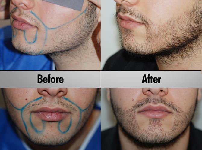 beard_transplant